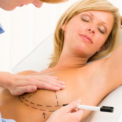 Mamoplastia - Aumento de Pecho