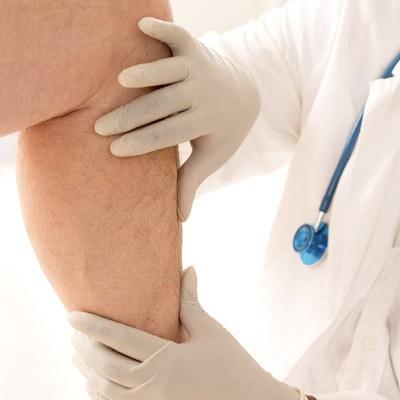 tratamiento medico de varices