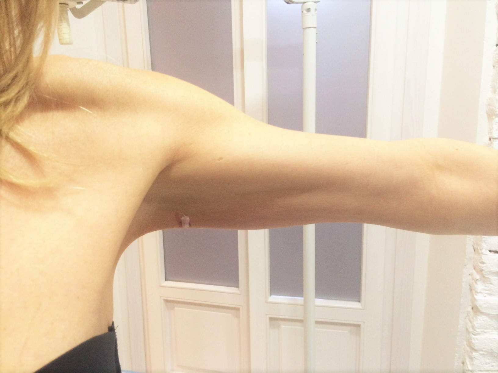 hilos-tensores-corporales-brazo