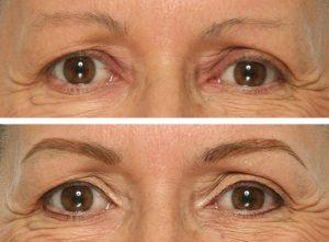 micropigmentación cejas antes después
