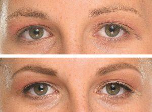 micropigmentación cejas antes y después 2