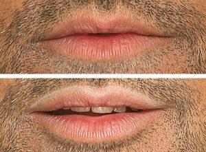 micropigmentación labios antes después