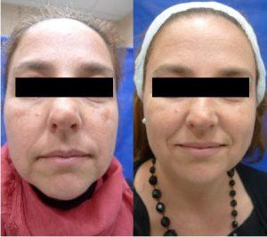 Inducción de colágeno hiperpigmentaciones