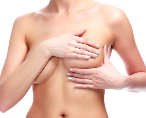 La solución para los pechos caídos: mastopexia