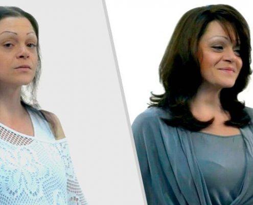 ¿Tienes poco pelo? Las MicroLíneas de Hairdreams pueden ser la solución