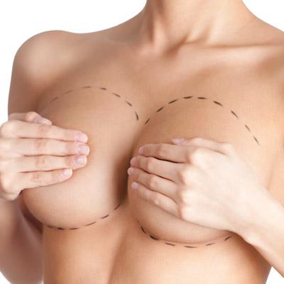 mastopexia - Elevación del pecho
