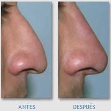 modelacion de nariz