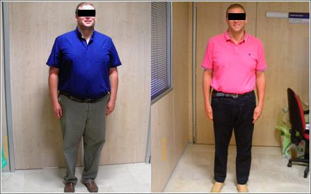 obesidad antes y despues