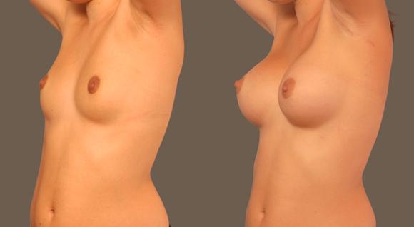 Imagen del resultado de aumento de pecho