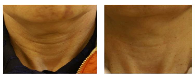 hilos tensores cuello