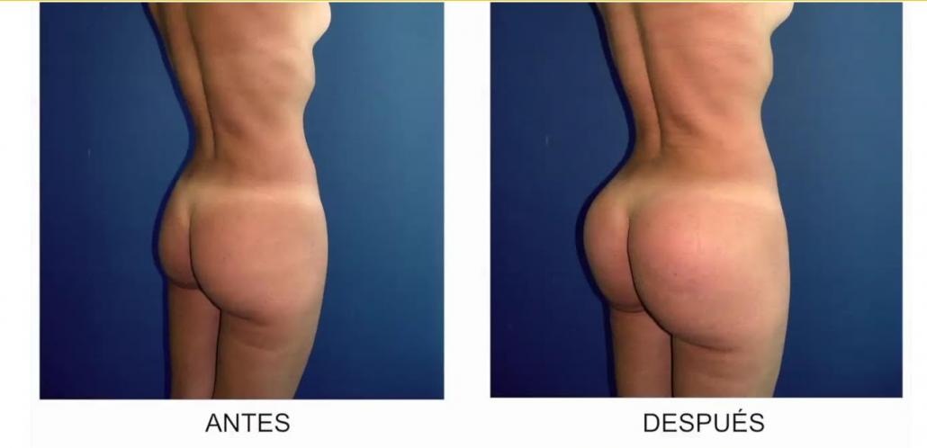 Gluteoplastia - Antes y Después