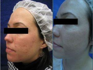 Inducción de colágeno acné