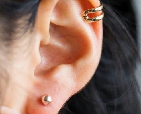 ¿Tienes complejo con tus orejas? Corrígelas mediante la otoplastia